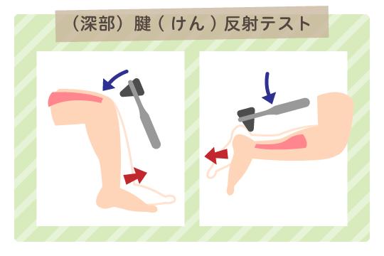 (深部)腱(けん)反射テスト